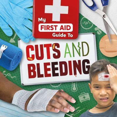 Cuts and bleeding